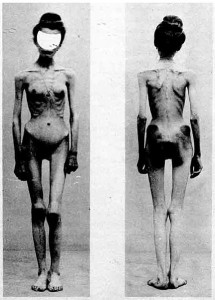 what are facts about anorexia